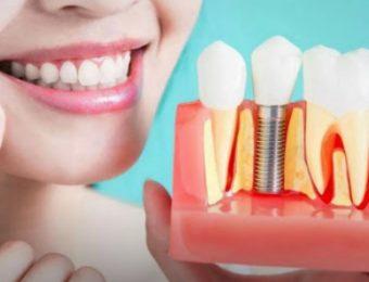 Преимущества имплантации зубов перед другими видами протезирования