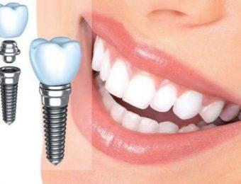 Особенности имплантации зубов: особенности, преимущества, риски