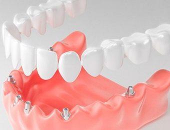 Особенности протезирование зубов