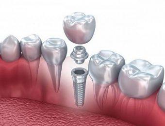 Имплантация зубов в стоматологиях Москвы